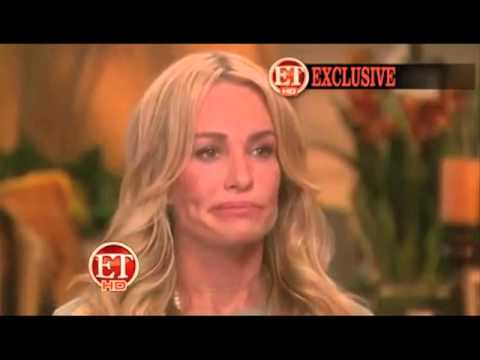 Taylor Armstrong: The Physical Signs of Abuse
