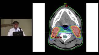 두경부암 방사선치료에 대처하는 자세 미리보기
