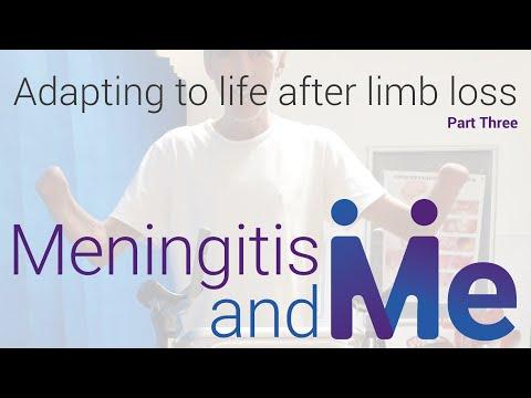 Meningitis & Me: Adapting to life following limb loss due to meningitis / septicaemia (Part 3)