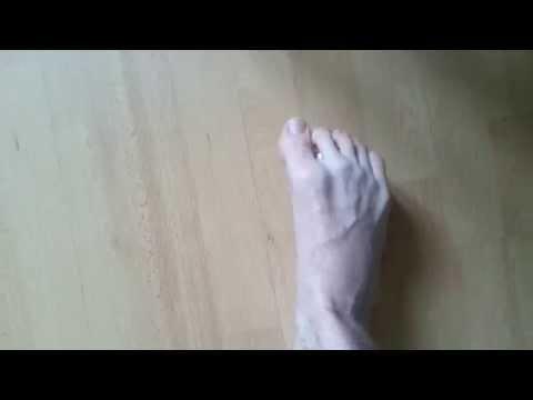 comment soigner cloque pied