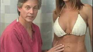 Dr. Peter McKenna - Liposuction