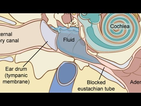 how to cure fluid in the ear