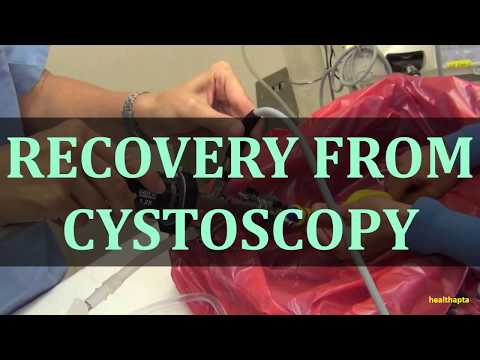 Video RECOVERY FROM CYSTOSCOPY download in MP3, 3GP, MP4, WEBM, AVI, FLV January 2017