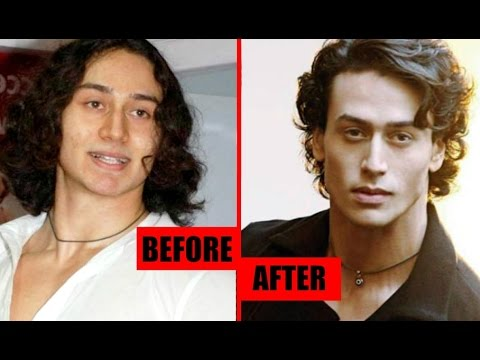 Tiger Shroff Plastic Surgery - Before And After