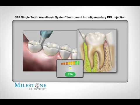 STA-модифицированная интралигаментарная анестезия