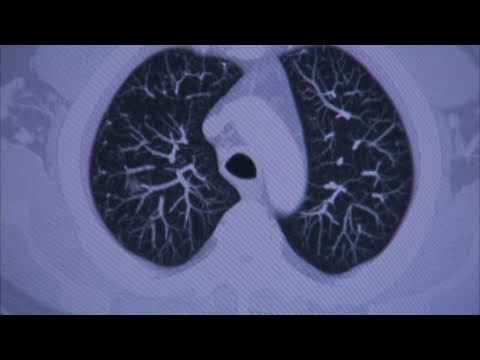 The Benefits of CT Screening for Lung Cancer