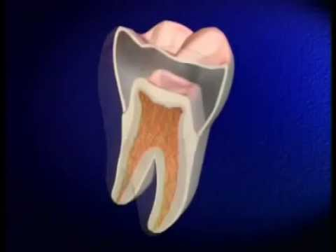 Why Do You NEED A Root Canal
