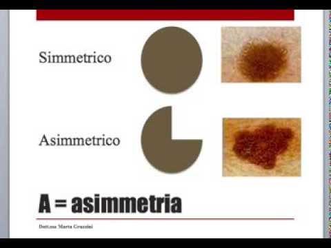 melanoma, il tumore della pelle: sintomi, cause e come riconoscere i nei