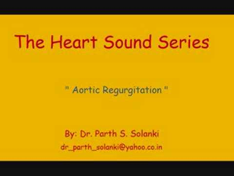 Aortic Regurgitation – Sound