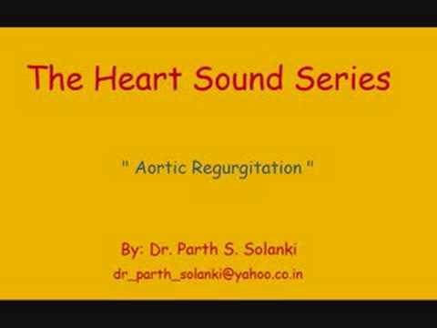 Aortic Regurgitation – Sound