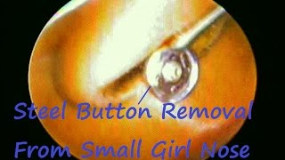 This video show Endoscopic Removal of Steel Button from small Girl Nose .She gives history of putting Steel Button in nose few hours back while playing .Her parents also gives history of cold cough & nose itching since few days .Children mostly put foreign body in nose when they feel itching inside nose due to cold , allergy & rhinitis .No anesthesia / Sedation used during procedure . She was comfortable during whole procedure . Nose drop prescribe after procedure .Thanks !!!Have a GOOD Day .