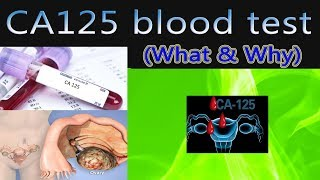 CA 125 blood test ovarian cyst -  tumour marker (What & Why)