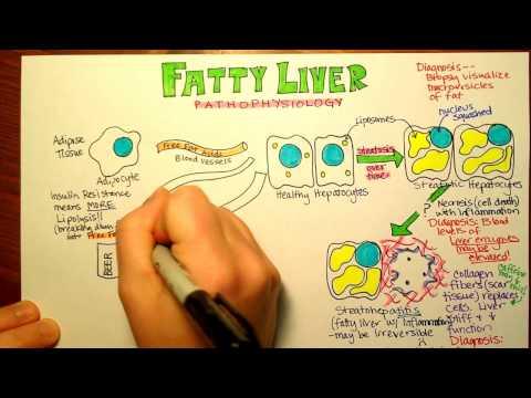 Fatty Liver Pathophysiology