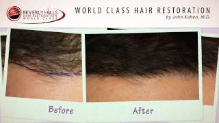 Before and After Hair Restoration Post op one year at Beverly Hills Hair Restoration