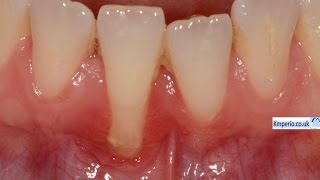 Video Gum (Gingival) Recession Surgery Treated with Gum Graft. MP3, 3GP, MP4, WEBM, AVI, FLV November 2018