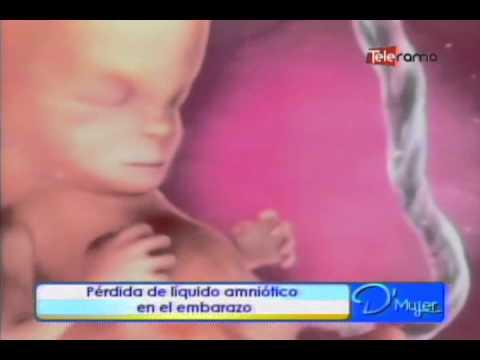 Pérdida de líquido amniótico en el embarazo