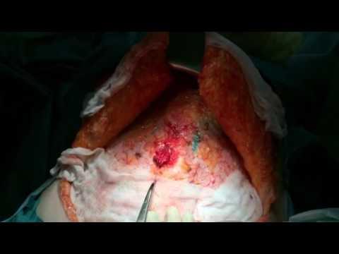 Удаление пупочной грыжи. Сшивание прямых мышц живота