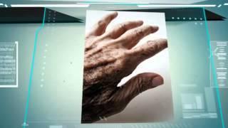Aprende como curar el Parkinson Aquí: http://www.comidasquecuran.com/7-minutos/parkinson.html Sabemos que el Parkinson puede resultar terrible...Todos prefer...