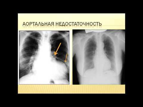 Рентгенологическая картина аортальной формы сердца