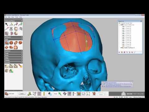 How to - Cranial Implant Designs using Geomagic Sculpt