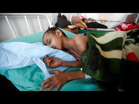 Δύο εκατομμύρια παιδιά υποσιτίζονται στην Υεμένη