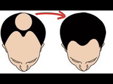 Easy Solution for Hair Loss