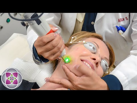 Non Surgical Facelift Before and After