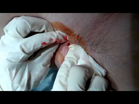 Armpit cyst cut and drainage (Part 2)