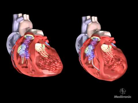 The Effect of Dyssynchrony on the Heart