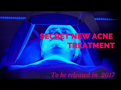 Latest acne treatment- due in 2017