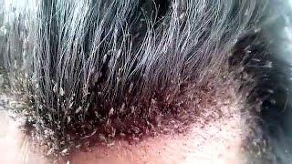 Cara Menghilangkan Kutu Rambut Dan Telurnya Dengan Cepat 1 Hari