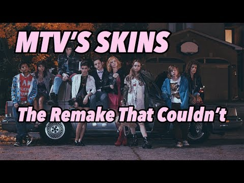 "The Remake That Couldn't: Skins ""U.S."""