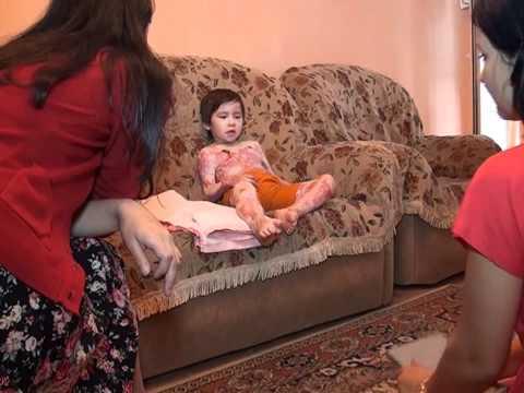 Ожог семидесяти процентов тела ребенка