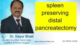 SPLEEN PRESERVING DISTAL </br>PANCREATECTOMY LAP