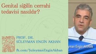 Genital Siğilin Cerrahi Tedavisi Nasıldır? - Prof. Dr. Süleyman Engin Akhan