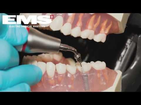 EMS очистка имплантов - Инструмент PI