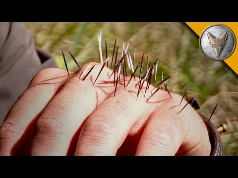YIKES! Quilled by a Porcupine!
