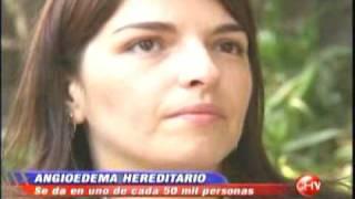 Chilevisión - Te Ve de Verdad - Angiodema hereditario