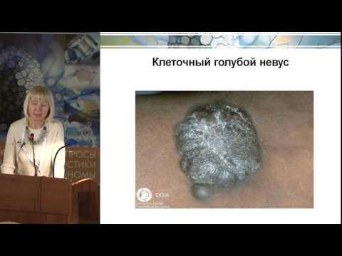 М.А. Гуреева, Доброкачественные меланоцитарные новообразования кожи.