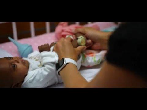 ΗΠΑ: Εξιτήριο για το μικρότερο μωρό του κόσμου