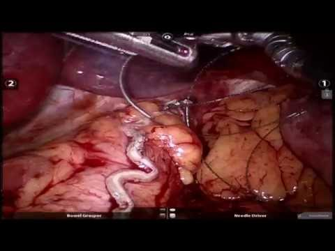 Stapler misfire during robotic sleeve gastrectomy