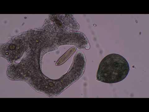 Триллер глазами микроскопа