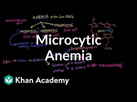 Microcytic Anemia Video Khan Academy