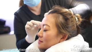 Video Eyebrow Transplant Procedure on Dr. Cat Begovic MP3, 3GP, MP4, WEBM, AVI, FLV November 2018