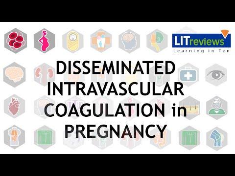 Disseminated Intravascular Coagulation DIC in Pregnancy