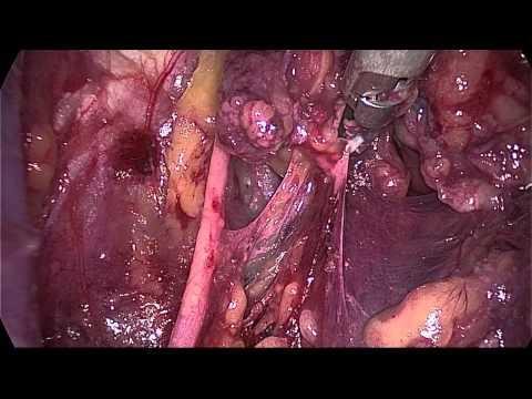 Total Laparoscopic Radical Trachelectomy (nerve sparing) - Part 1 of 2