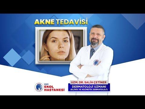 Akne Tedavisi