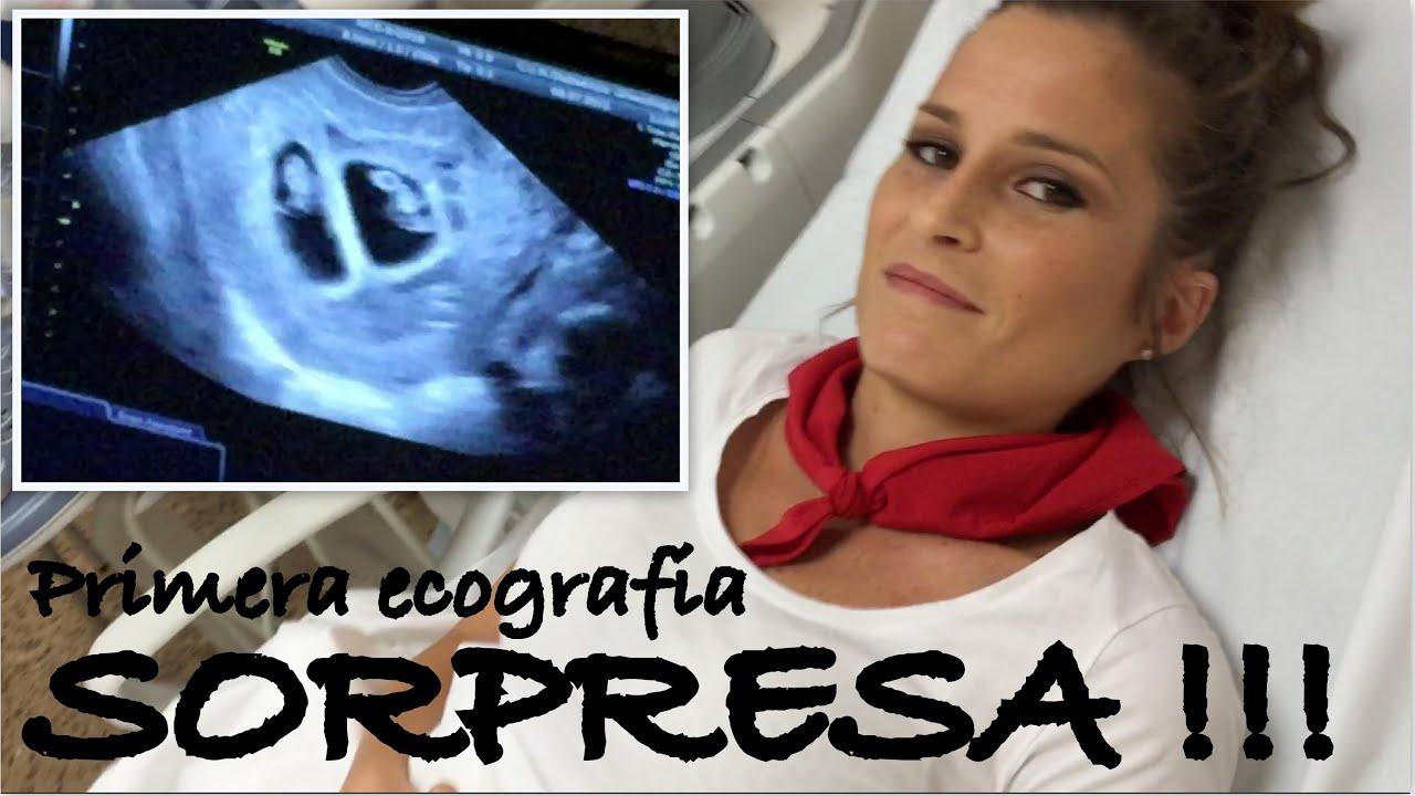 Ecograf a 7 semanas embarazo gemelos sorpresa lucreing - 15 semanas de embarazo cuantos meses son ...