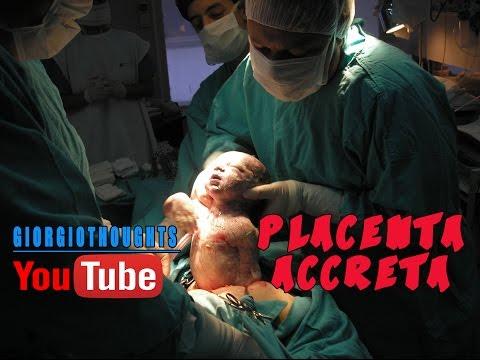 Enfermedades Durante el Embarazo: Placenta Accreta