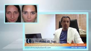 Op. Dr. Mustafa Ali Yanık lazerle burun ameliyatı nasıl yapılır